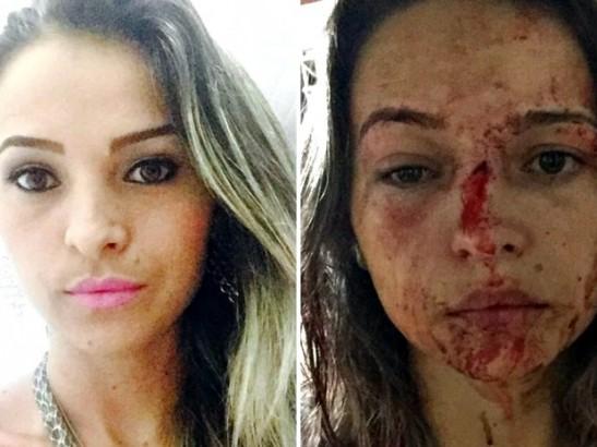 Amiga de Miliane, Pamela teve o nariz quebrado por conta das agressões (Foto: Reprodução/Arquivo Pessoal)
